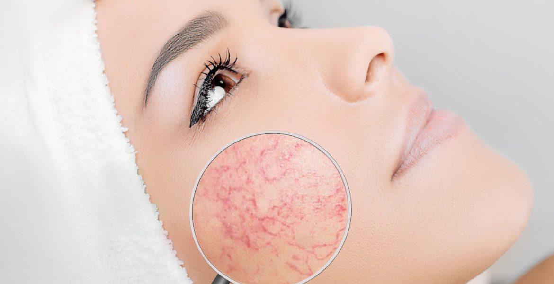Tratament pentru acnee rozacee, dușmanul de temut al femeilor cu pielea albă