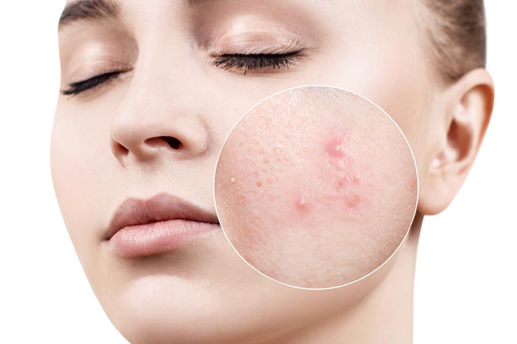 Îngrijirea tenului gras. Cum arată ritualul de îngrijire al tenului acneic