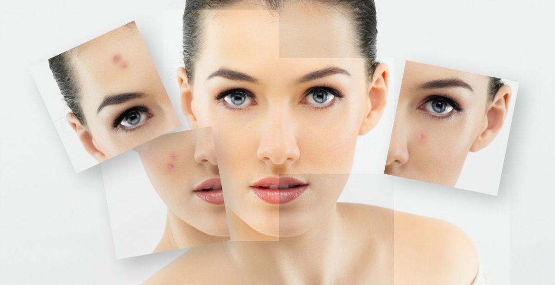 Îngrijirea tenului sensibil: cum să calmezi pielea intolerantă