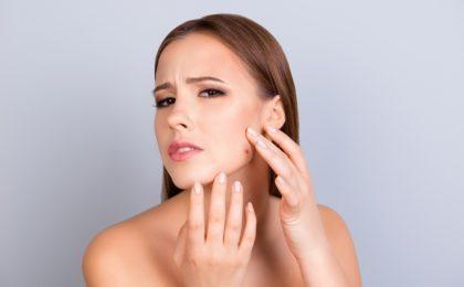acnee comedoniana