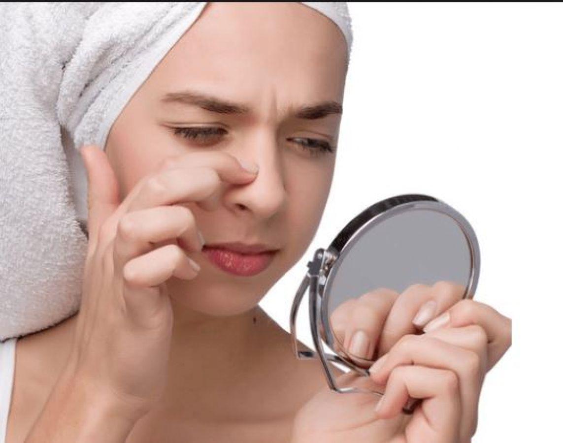 Cum extragi punctele negre acasa: metoda unui cosmetician - Andreea Raicu